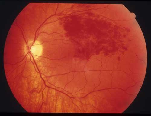 علاج النزيف داخل العين