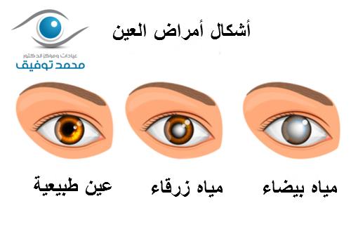 الفرق بين المياه البيضاء والزرقاء فى العين