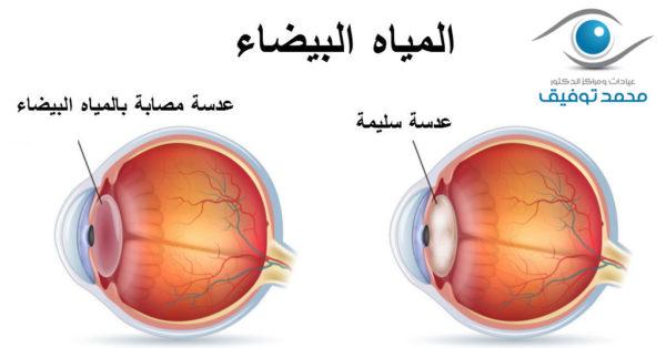 الفرق بين العين السليمة والمصابة بالمياه البيضاء
