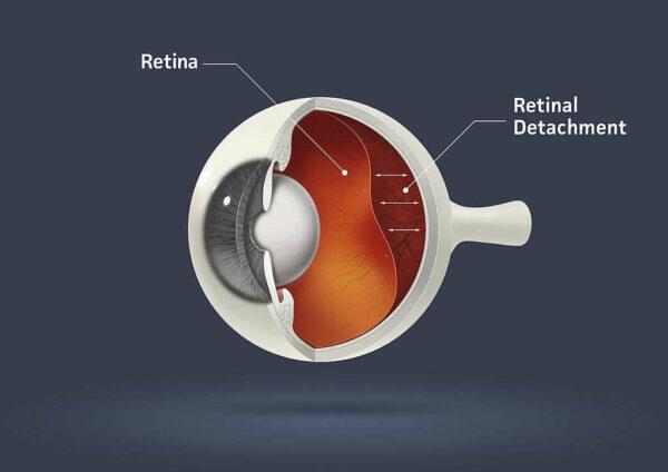 شكل العين بعد انفصال الشبكية