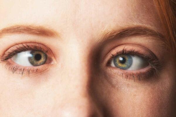 حول العين