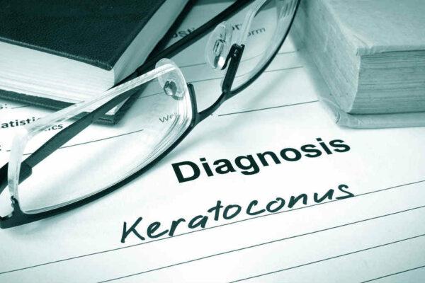 تشخيص القرنية المخروطية
