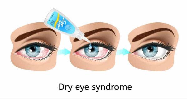 أسماء قطرات جفاف العين