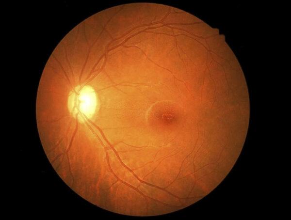 تأثير مرض السكري على شبكية العين